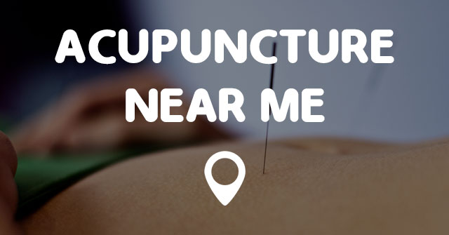 ACUPUNCTURE NEAR ME - Points Near Me